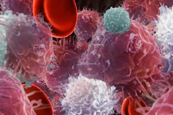 вирусный лейкоз под микроскопом