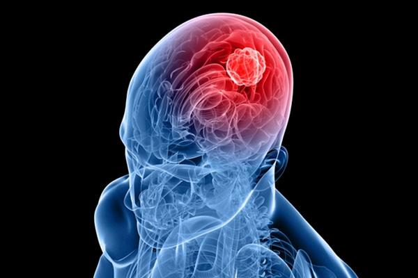 как отражается опухоль на неврологии