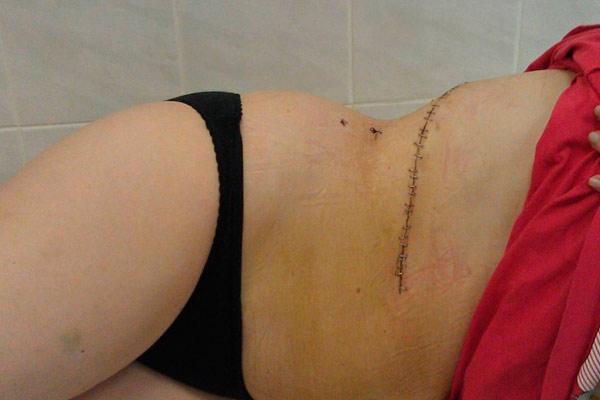 реабилитация после операции