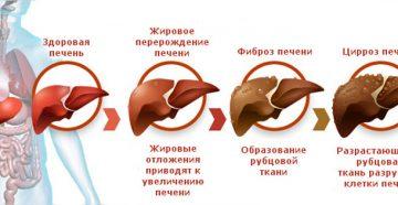 как проявляется цирроз печени: симптомы у мужчин