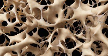 рак костей: симптомы и проявление на ранних и поздних стадиях
