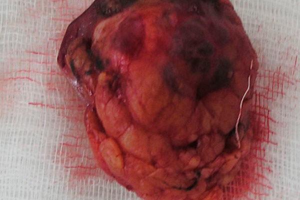 фото настоящей опухоли