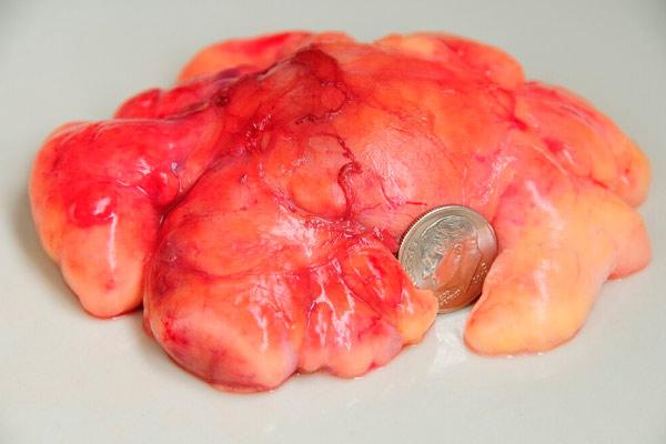 лечение липомы ультразвуком