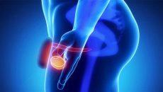 методы диагностики опухоли яичка у мужчин