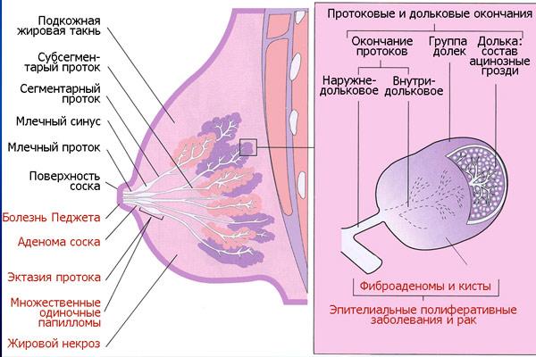рак молочной железы 2 степени: продолжительность жизни после проведения операции
