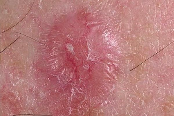 как выглядит начинающийся рак кожи