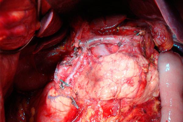 разрез во время операции