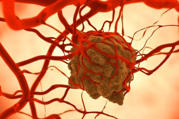раковая клетка под микроскопом