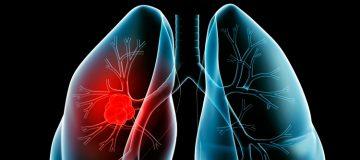 от чего возникает лимфома легких