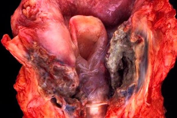 раковая опухоль при вскрытии