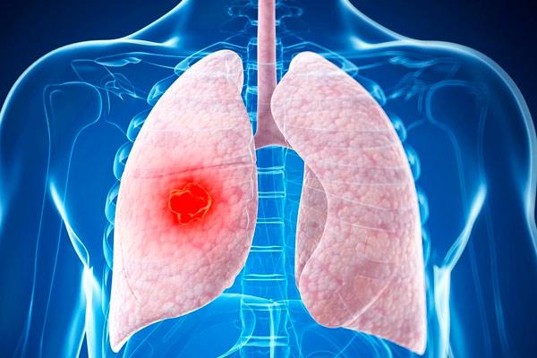 злокачественные заболевания легких
