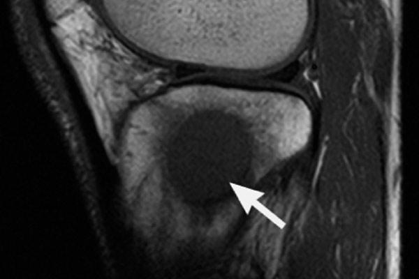 метастазы в костях при раке различных органов