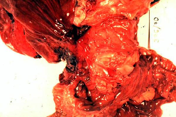 как выглядит удаленная опухоль