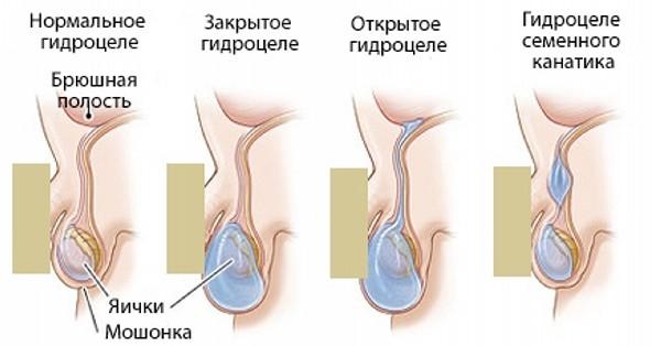 рак придатка мужского органа