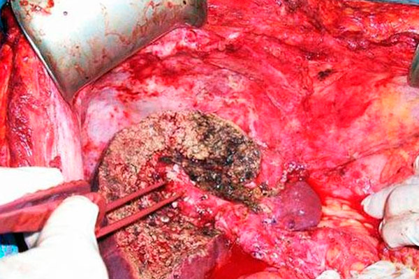 фото безалкогольного рака печени