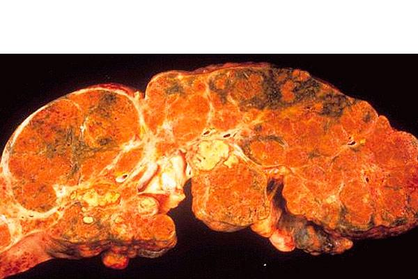 больной орган удален у пациента
