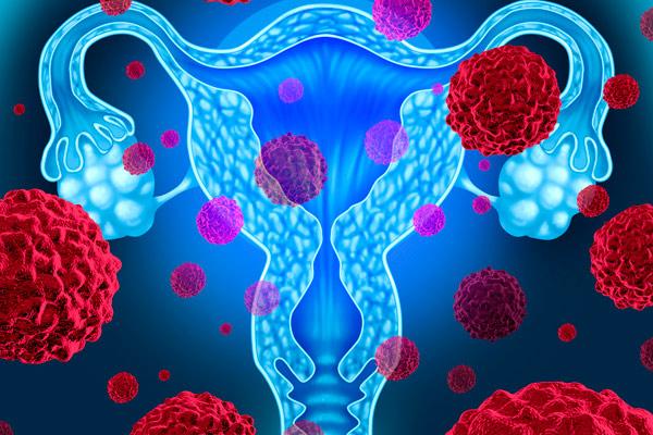признаки рака шейки матки на ранней стадии развтия