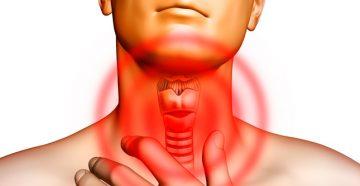 какие симптомы и признаки свидетельствуют о раке горла