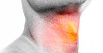рак горла: самые опасные симптомы у мужчин