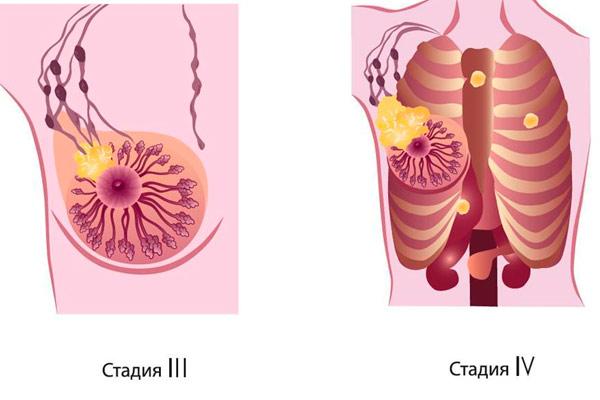 запущенные стадии рака