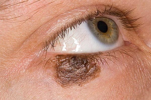 злокачественная опухоль на глазу