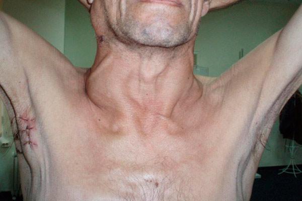 неходжкинские лимфомы