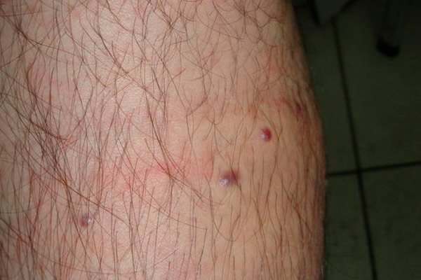 саркома на ногах