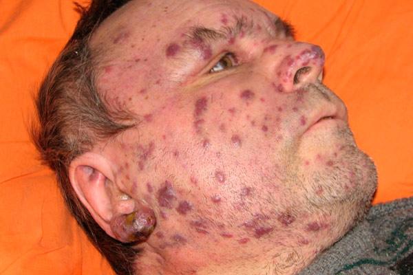 проявление опухоли на лице