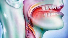 рак горла симптомы на ранних стадиях хорошо поддается лечению