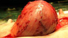 от чего возникает опухоль мочевого пузыря у мужчин