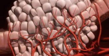 редкий вид рака саркома: что это за болезнь