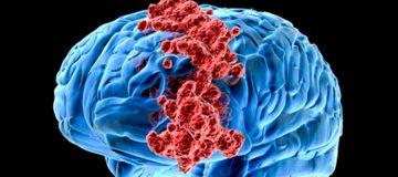 как проявляется лимфома головного мозга