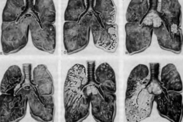 исследование легких на наличие рака