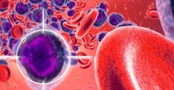 отличительные признаки лейкоза у маленьких детей