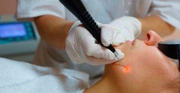 лазерное удаление липомы без шрамов