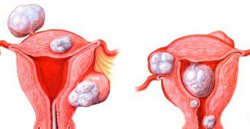 хронические инфекционные заболевания являются причиной возникновения миомы матки