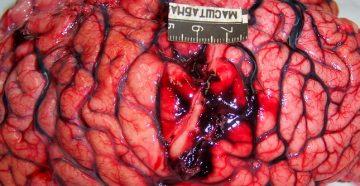 список симптомов рака головы