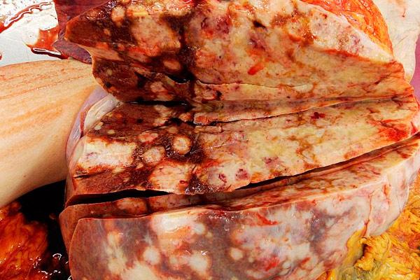 орган с метастазами в разрезе
