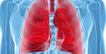 признаки рака легких у курящих женщин