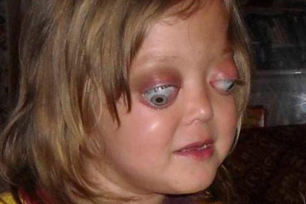 запущенная глиома у ребенка