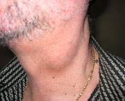 у пациента лимфома шейных узлов