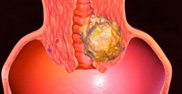 рак шейки матки: сколько живут при обнаружении 3 стадии