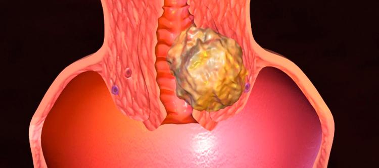 Рак шейки матки 3 стадии: сколько живут после удачного излечения