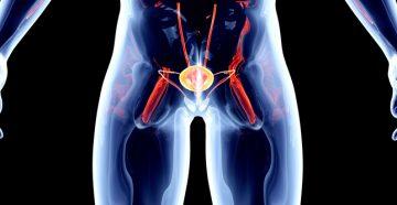 карцинома мочевого пузыря и ее проявления