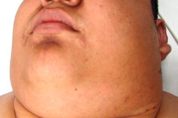 сколько живут с лимфомой ходжкина