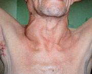 рак лимфоузлов на шее в последней степени
