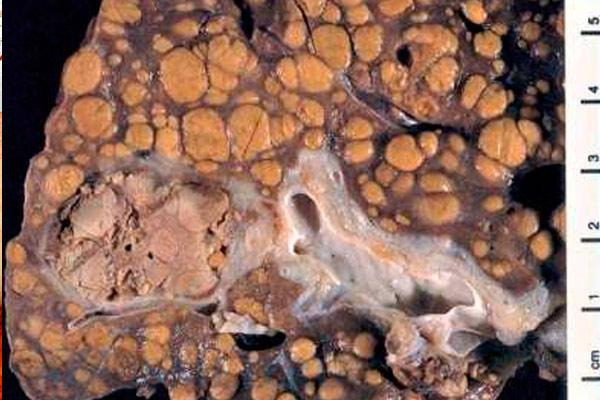 как выглядит первичный гепатоцеллюлярный рак печени