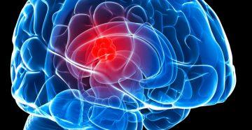 на какие первые признаки опухоли мозга нужно обратить внимание