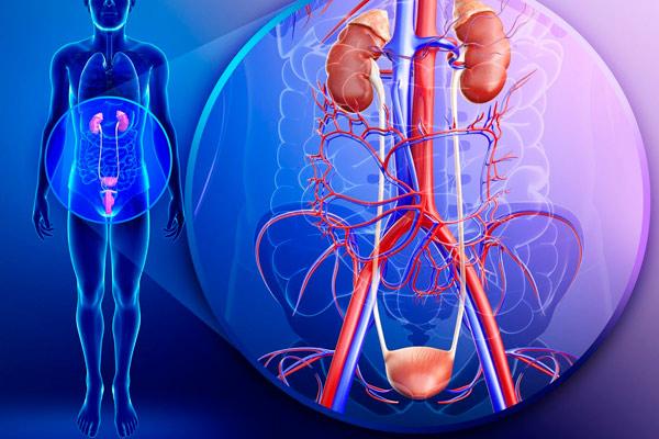 переходно клеточная карцинома мочевого пузыря