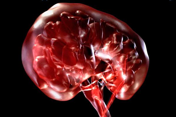 уротелиальная карцинома мочевого пузыря